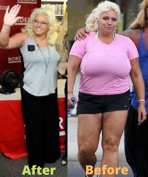 What did Beth Chapman look like before and after weight loss?